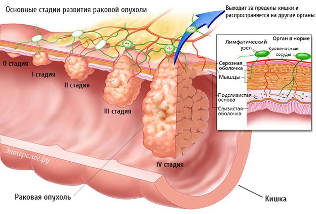 Стадии распространения онкологии кишечника