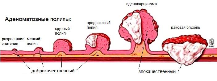 Как развивается аденокарцинома прямой кишки