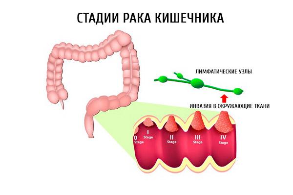 Как развивается рак кишечника?