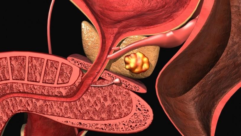 Какими лекарством лечить предстательную железу