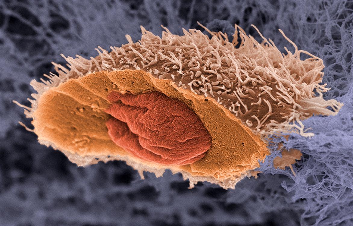Народные методы лечения рака печени