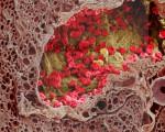 Аденокарцинома (железистый рак) — симптомы, виды, лечение и прогноз жизни