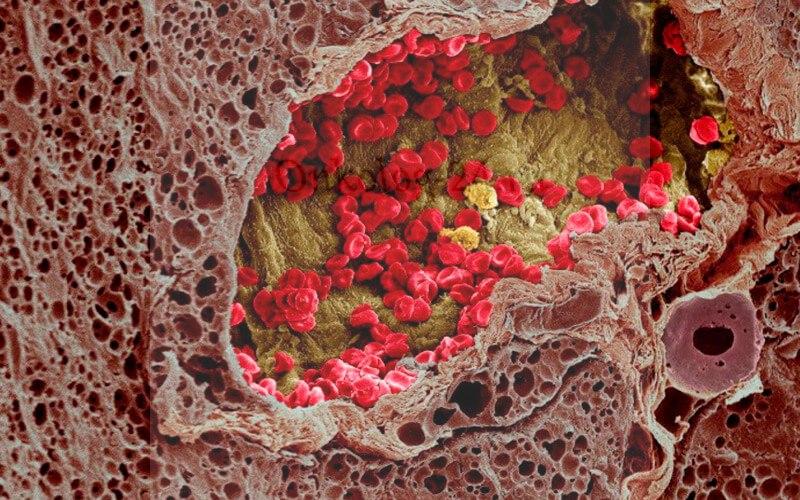 adenokartsinoma
