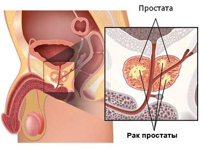 Рак простаты у мужчин симптомы, лечение