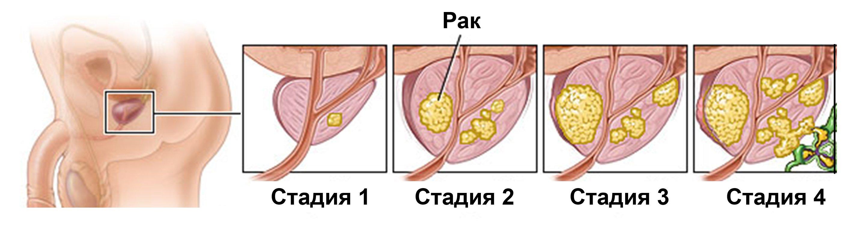 что такое последняя стадия простатита