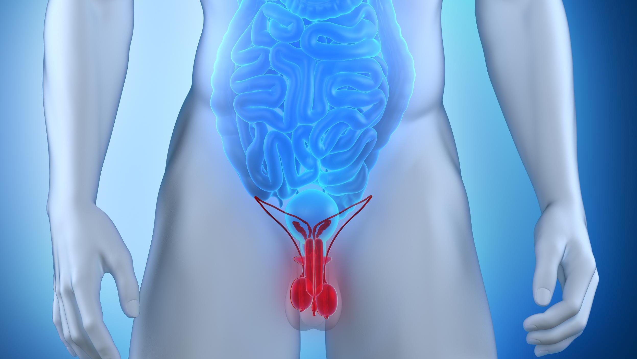 Злокачественная опухоль предстательной железы