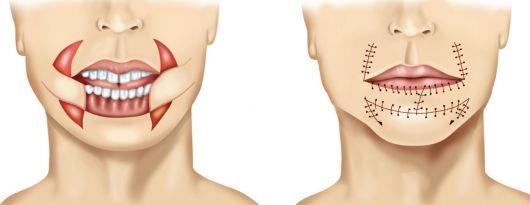 Как часто встречается рак челюсти