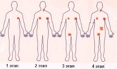 Этапы развития лимфом