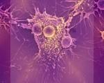 Лимфома Ходжкина, что это за болезнь, симптомы и стадии, сколько живут пациенты?