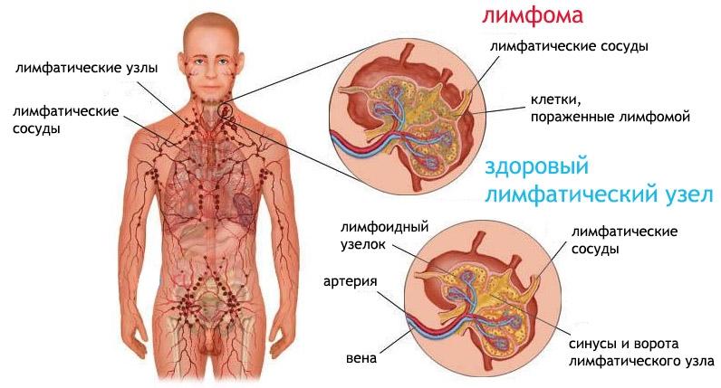 Что такое лимфома?