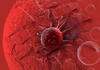 Прогноз и лечение при аденокарциноме толстой кишки