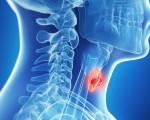 Папиллярный рак щитовидной железы — симптомы, лечение и прогноз для пациентов