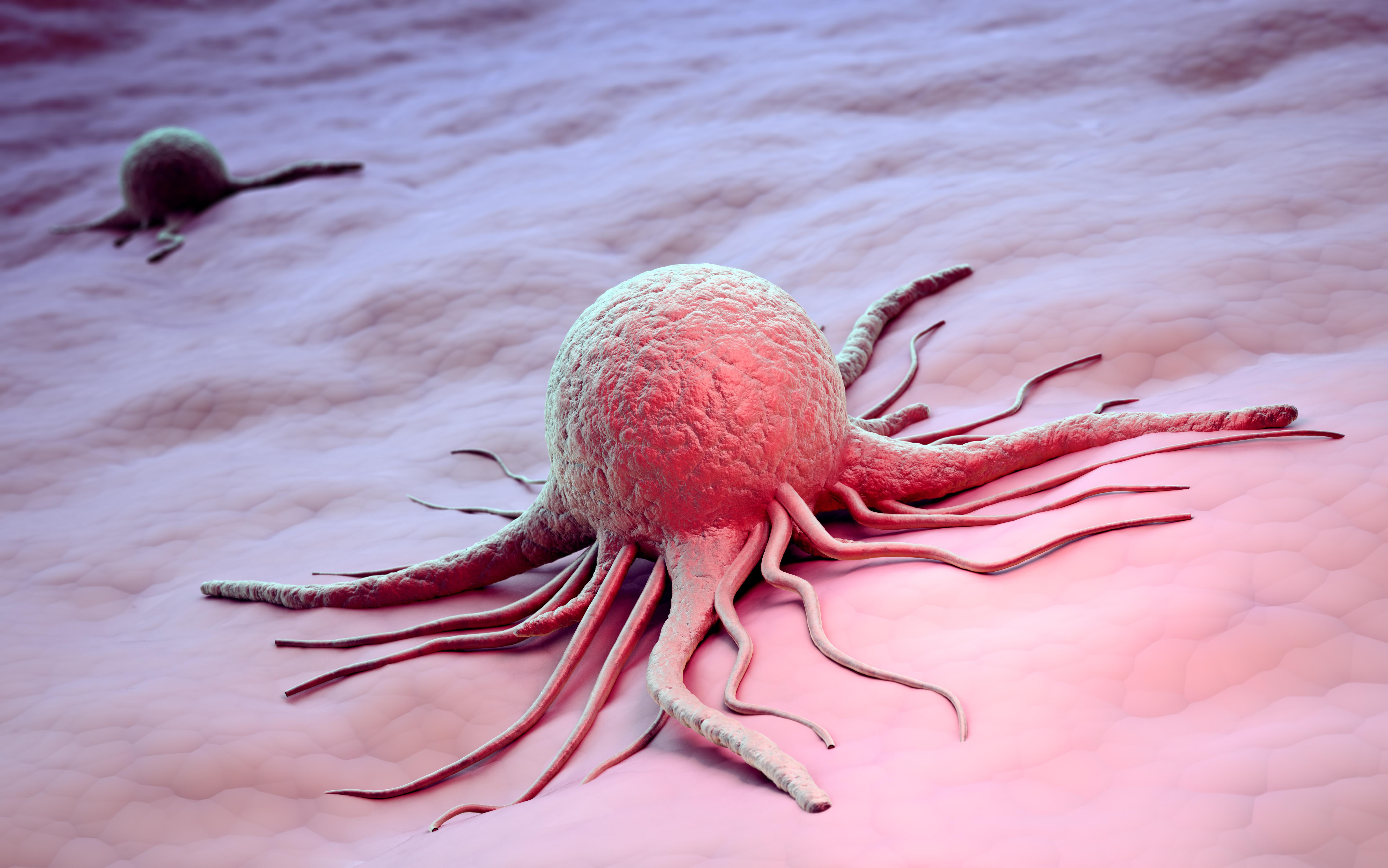 Аденокарцинома железистый рак что это такое