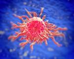Аденокарцинома кишечника или железистый рак