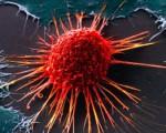 Аденокарцинома прямой кишки или железистый рак