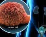 Аденокарцинома мочевого пузыря или железистый рак
