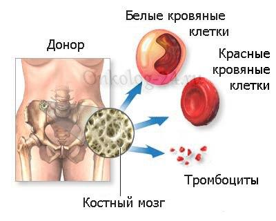 Rak kostnogo mozga u detey