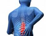 Опухоль спинного мозга и позвоночника у детей