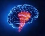 Опухоль ствола головного мозга у детей