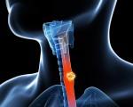 Аденокарцинома пищевода или железистый рак