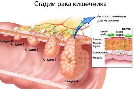 рак кишечника 4 стадии диета