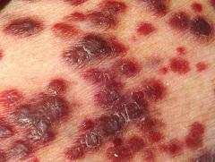Саркома Капоши в виде выпуклых пятен на коже