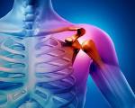Саркома Юинга: симптомы, лечение, прогноз