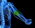 Остеогенная саркома: причины, симптомы, лечение