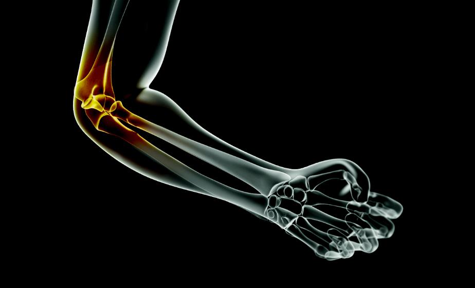 рак коленных суставов