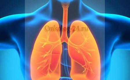 Симптомы и лечение саркомы в легких