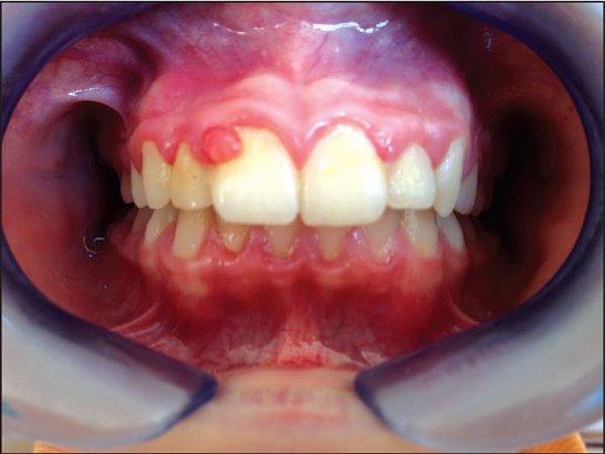 Рак челюсти – злокачественное новообразование, происходящее из эпителиальной ткани.