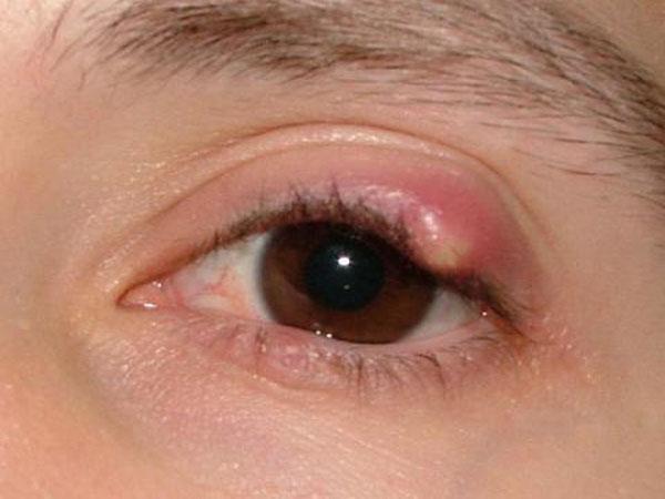 Меланома века глаза