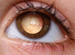 Фото ретинобластомы или рака сетчатки глаза