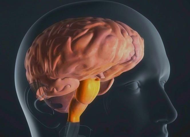 Раковая опухоль в стволе головного мозга