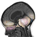 Пилоцитарная (пилоидная) астроцитома головного мозга