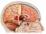 Фото видов опухолей головного мозга