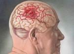 Фотографии рака головного мозга