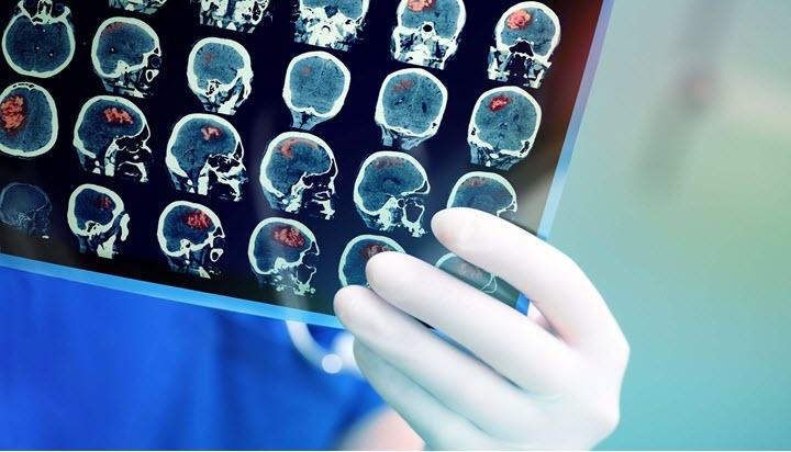 Диагностика раковой опухоли головного мозга