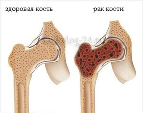 Na foto predstavle rak kostnogo mozga