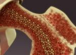 Фотографии рака костного мозга