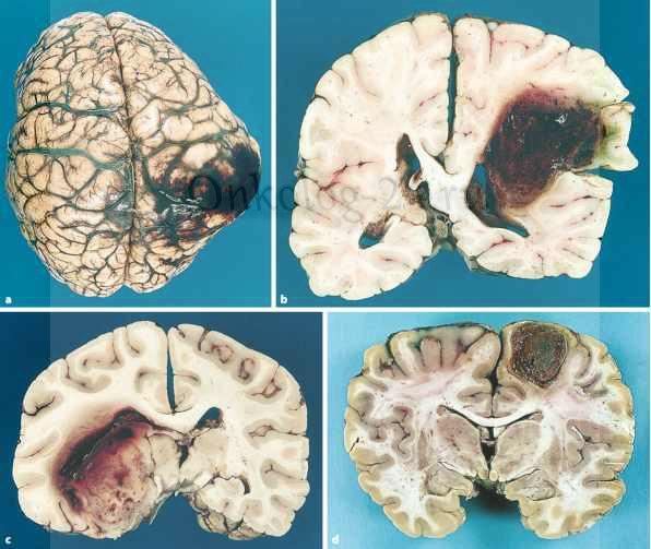 Gigantskaya glioblastoma