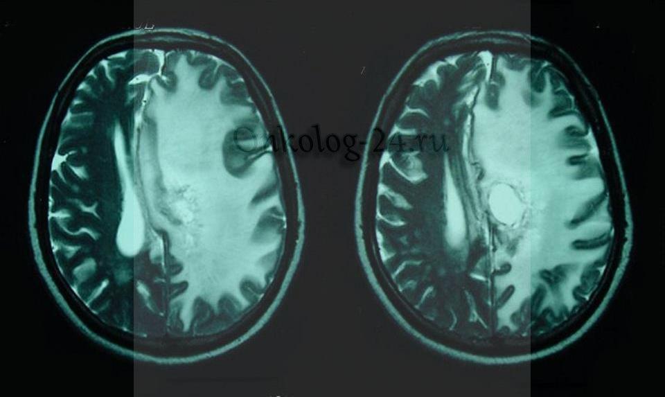 Izomorfnokletochnaya glioblastoma