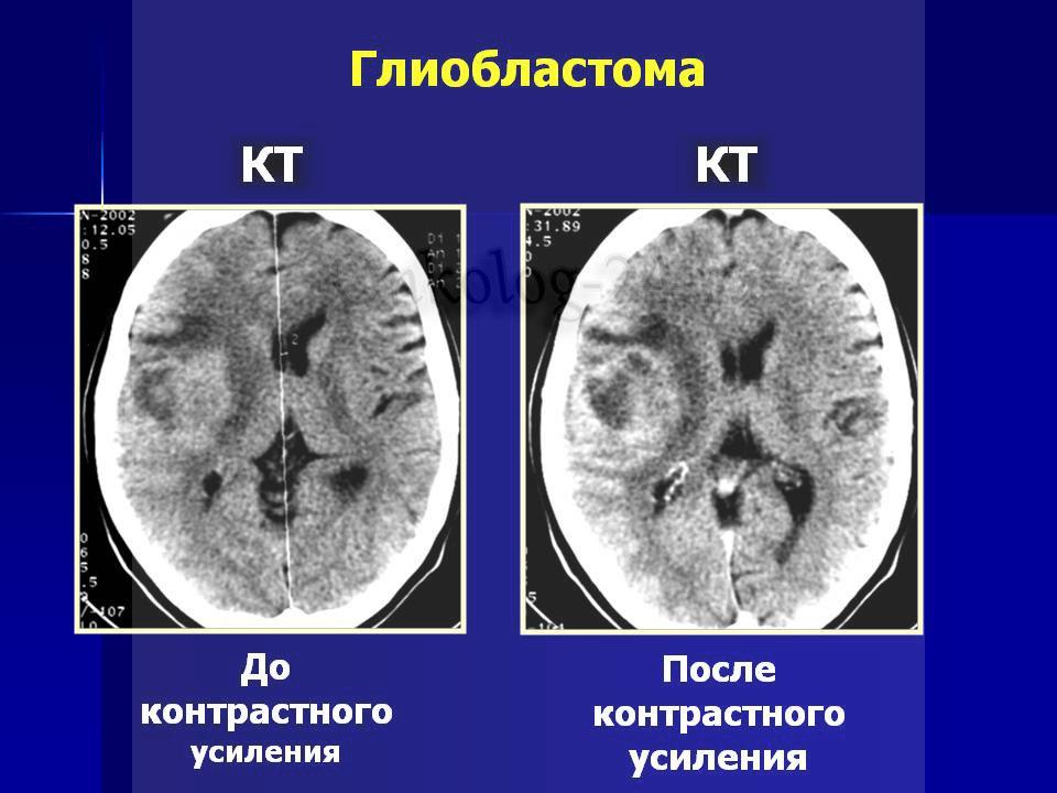 glioblastoma golovnogo mozga