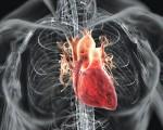 Саркома сердца
