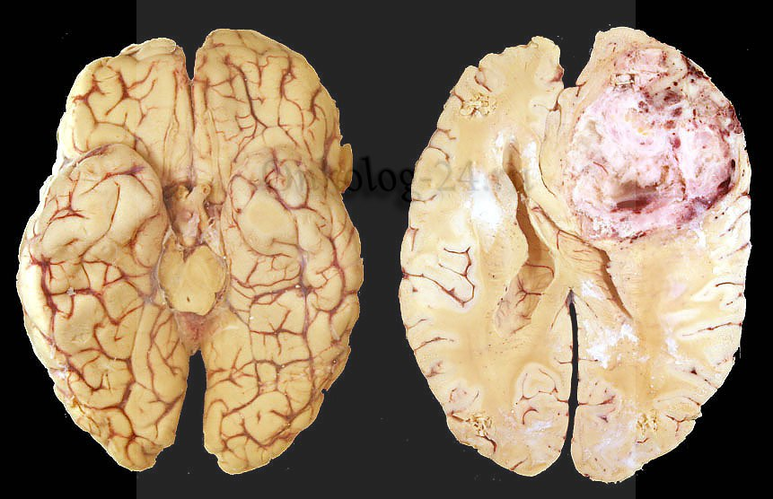 multimorfnaya glioblastoma mozga