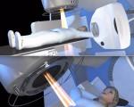 Лучевая (радиотерапия) терапия при печени