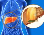 Саркома печени: симптомы, лечение и прогноз