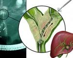 Цистаденокарцинома (рак) желчных протоков