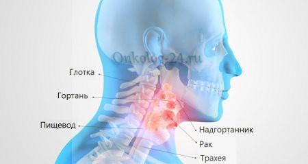 Рак гортани: симптомы и лечение