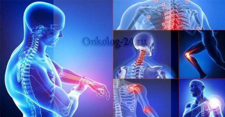 Как диагностировать и лечить рак костей?